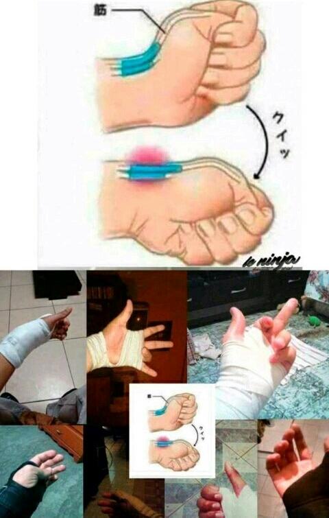 How to break your tendon - meme