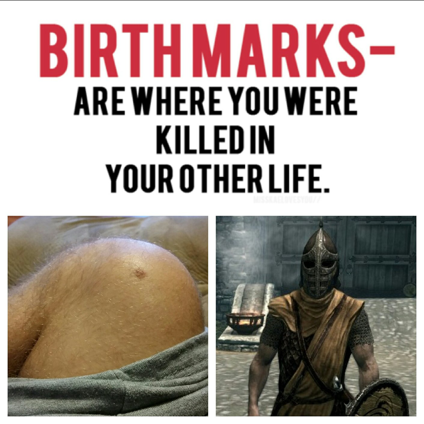 I have this mark on my knee...coincidence? - meme