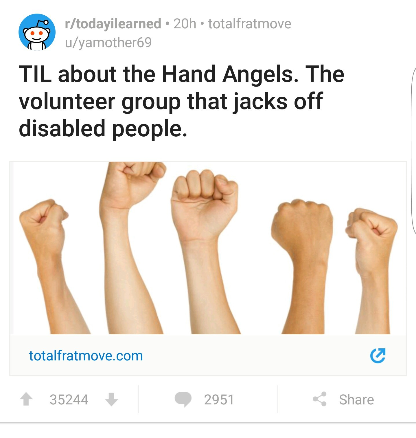 Ever wanted to be disabled? Now you do - meme