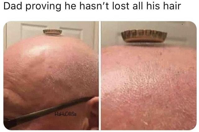 Dad hasn't lost all his hair - meme