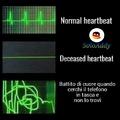 Heartebeat2