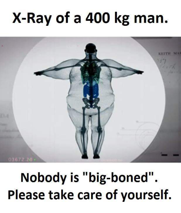 OH MY DAYZ.... STRONG BONES, NOT BIG BONES. - meme