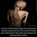 Skeleton War